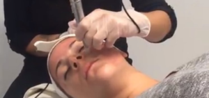MDPen Micro Needling video at Polished Spa